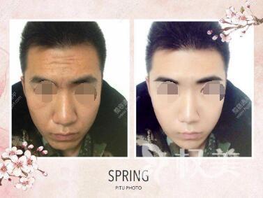 抬头纹怎么消除  涿州水电医院整形科激光去抬头纹效果能维持多久