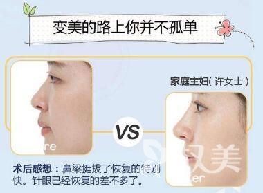 如何使鼻梁变高呢  唐山工人医院整形外科假体隆鼻能维持多久