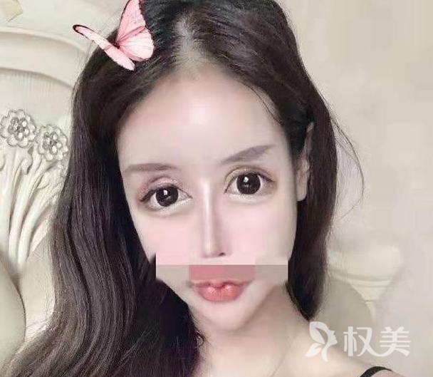 """""""蛇精男""""刘梓晨亲妹妹整容 打了50多针玻尿酸"""