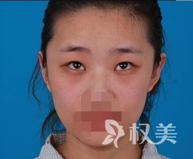 珠海美涵整形医院切开双眼皮前后对比图  化妆后更加灵动自然
