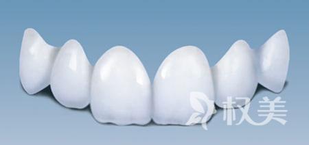 什么烤瓷牙好 肇庆华美全瓷牙整形更有优势