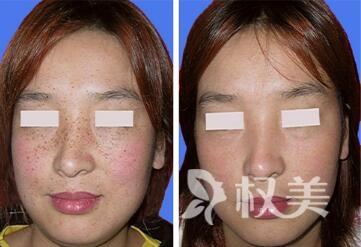郑州大学第二附属医院整形科彩光嫩肤祛斑效果怎么样  会不会反弹呢