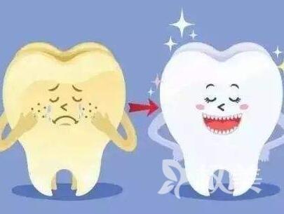 新疆整形美容医院牙齿美白优势有哪些  常用方法有哪些呢