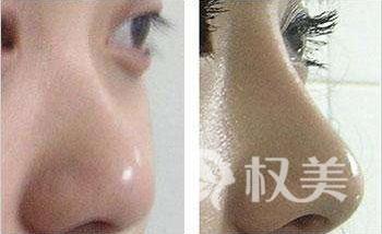 合肥哪家醫院做假體隆鼻好 隆鼻手術痛不痛