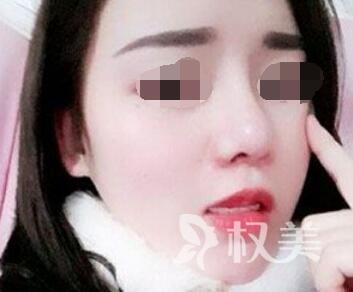 深圳睿京医疗美容医院假体隆下巴案例  拥有下巴  感觉像是变了一个人