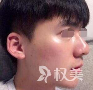 南宁联韩医学整形医院彩光嫩肤案例  皮肤变得真的不一样
