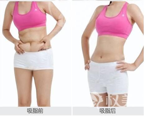 腰部吸脂減肥術是什么原理 上海嘉人整形美容醫院吸脂瘦腰需要多少錢