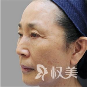 重庆爱德华医院整形科面部拉皮除皱手术  让时光在我脸上倒退10年
