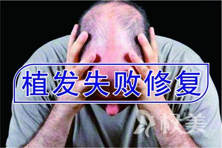 重庆碧莲盛植发整形美容医院植发失败修复多少钱 安全吗