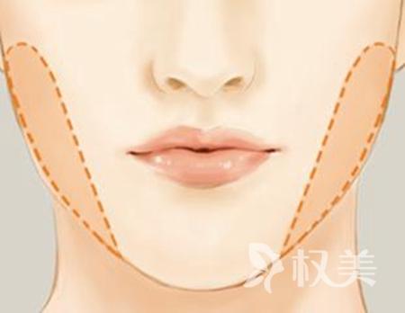 去頰脂墊瘦臉多少錢 會不會有風險