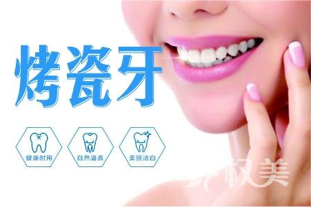 【美容冠】烤瓷牙/牙矫正  真实自然 坚固耐用 终结丑牙