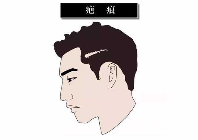 深圳希思整形医院植发怎么样 进行疤痕植发的条件是什么