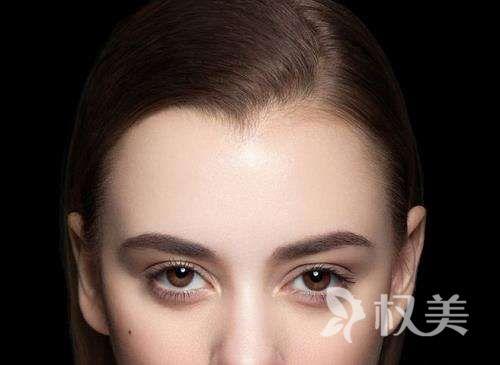 北京联合丽格植发医院美人尖种植效果自然吗
