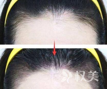 宁夏华美植发医院美人尖种植优势 植发的坏处