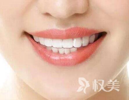 门牙有缝可以矫正吗 门牙有缝矫正多少钱