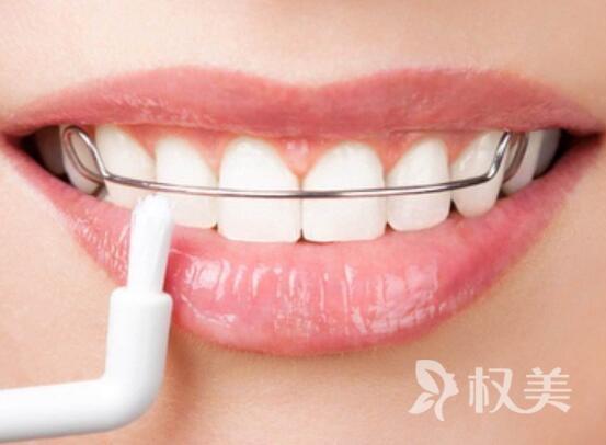 牙齿畸形矫正大概多少钱 牙齿畸形矫正注意事项