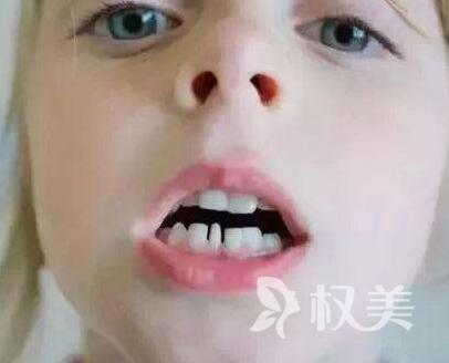 牙齒稀疏矯正多少錢 牙齒稀疏矯正存在哪些誤區