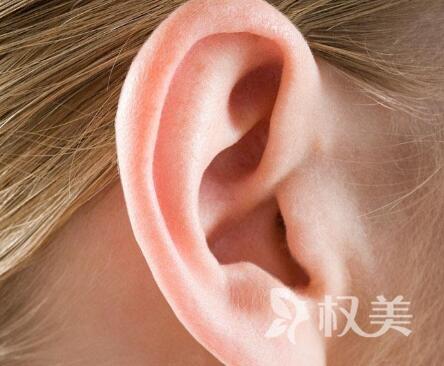 杯状耳矫正价格大概是多少 会不会很贵
