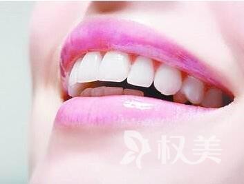 牙齿拥挤矫正大概多少钱 牙齿拥挤矫正方法有哪几种