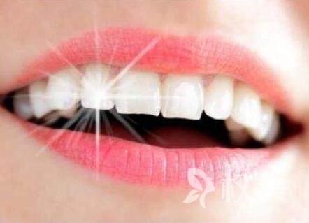 烤瓷牙價格是多少 烤瓷牙有哪些優勢
