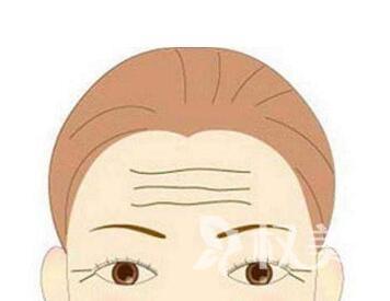如何去除抬头纹  天津怡丽亚韩整形医院激光去抬头纹的优点有哪些