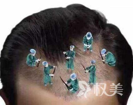 武汉做疤痕植发价格是多少 疤痕植发效果怎么样