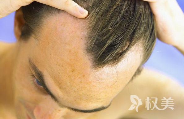 容易脱发吃什么好 如何才能更好的生发和防止掉发
