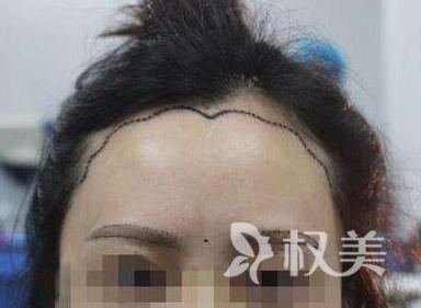 北京植信植发手术多少钱 北京美人尖种植价格是多少