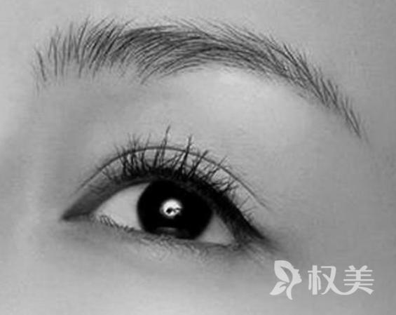 南京碧莲盛植发医院眉毛种植多少钱 需移植200-300个毛囊单位