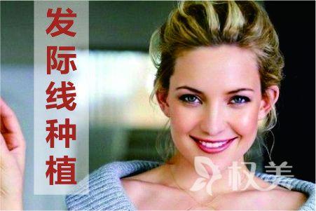 杭州碧莲盛植发医院发际线种植多少钱 多久长出新头发