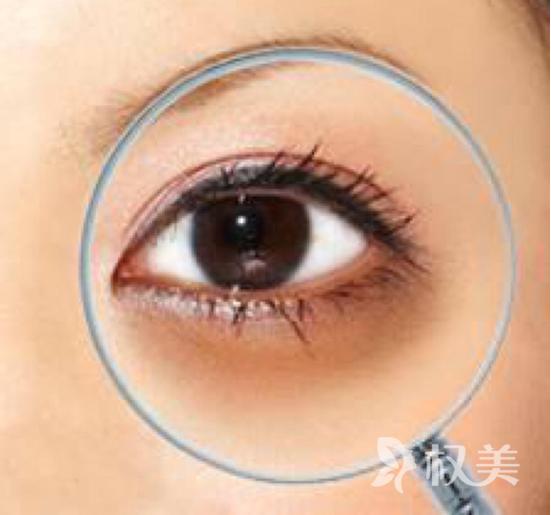 黑眼圈有什么危害呢 上海哪里去黑眼圈比较好