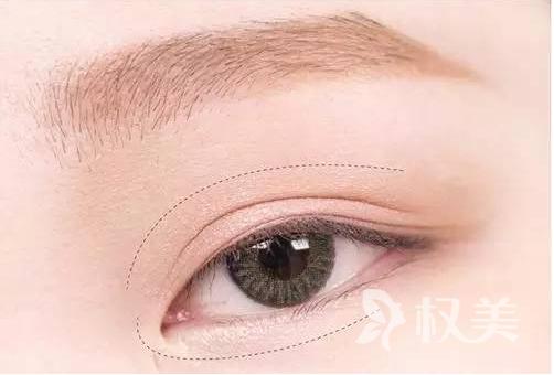 眼睑是面部的哪里 上海东方医院可以做上睑下垂矫正吗