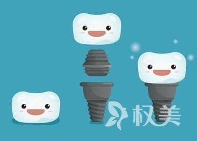种牙到底多少钱  天津极致整形医院种植牙优点有哪些