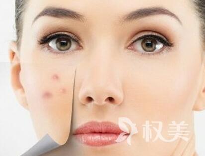 青春豆的治疗方法哪种好 上海翡立思整形医院激光去痘效果