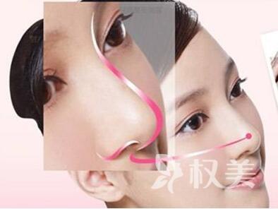 北京十大整形医院排名 北京欧扬整形医院做鼻翼缩小优势