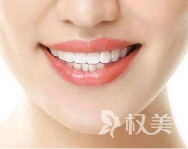 广东牙齿冷光美白价格 牙齿变白的秘密