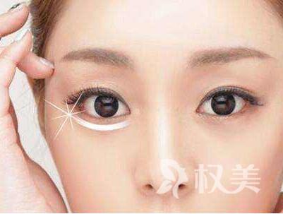 福州瑞麗整形醫院眼部吸脂的價格多少 吸脂去眼袋多久能恢復