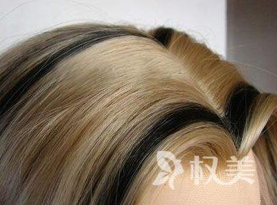 植发一次效果图 郑州欧兰做美人尖种植多久见效