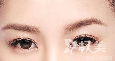 北京丽都植发美容医院眉毛种植多久见效 多少钱