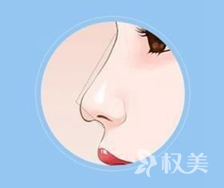 鹰钩鼻矫正需要多少钱 郑州米兰整形医院地址