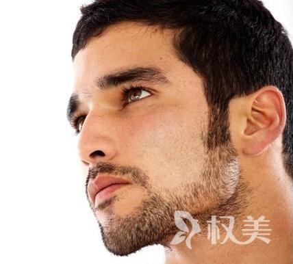 北京艺星植发医院鬓角种植靠谱吗 价格是多少