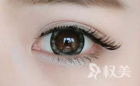 北京割双眼皮哪家医院好 术后怎么护理康复快