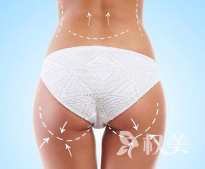 怎么瘦腰比較有效 溫州醫學美容醫院腰腹吸脂怎么樣呢