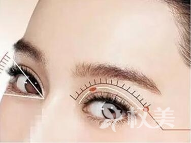 上海眼部整形哪家医院好 上海做埋线双眼皮需要多少钱