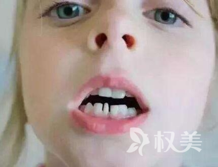 西安百思美口腔整形醫院糾正牙齒要多少錢