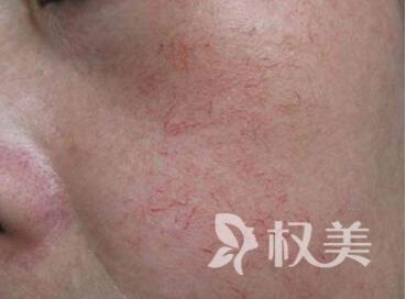 怎么有效治疗红血丝  天津恒大原辰整形医院激光治疗红血丝有哪些优点呢