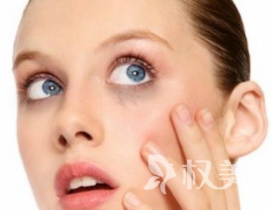 雀斑治疗费用是多少 廊坊艾美激光美容整形医院效果好吗