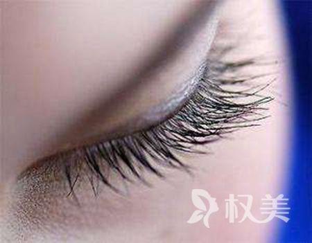 武汉哪里睫毛种植效果好 睫毛种植后还会掉吗