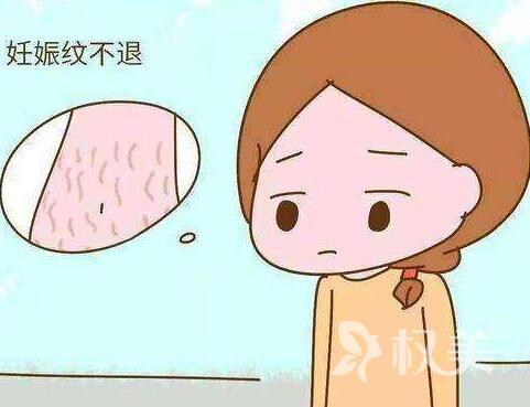 妊娠紋能去掉嗎 廣州激光去妊娠紋多久見效