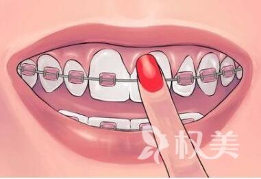 矯正牙齒需要多少錢  保定京都整形醫院牙齒矯正需要多長時間呢